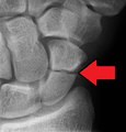 A more obvious scaphoid fracture on a scaphoid view X ray